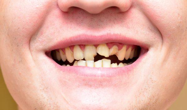 歯が折れた