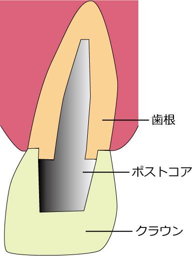 差し歯の仕組み