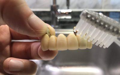 黄ばんだ差し歯を重曹で磨いている写真