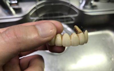 黄ばんだ差し歯を重曹で磨いた後の写真