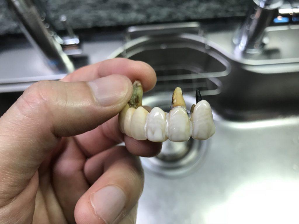 歯のマニキュアを塗布した後の差し歯を違う角度から見ている写真