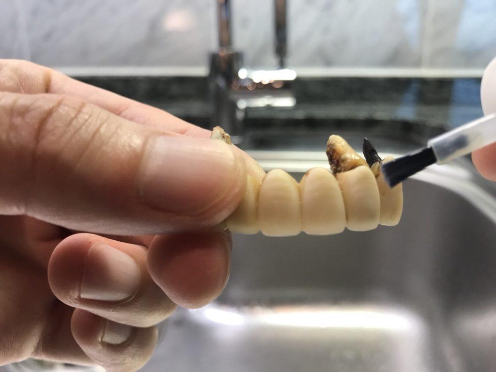 歯のマニキュアを差し歯に塗布する前の写真