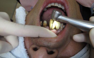 黄ばんでしまった差し歯をエアタービンで除去している