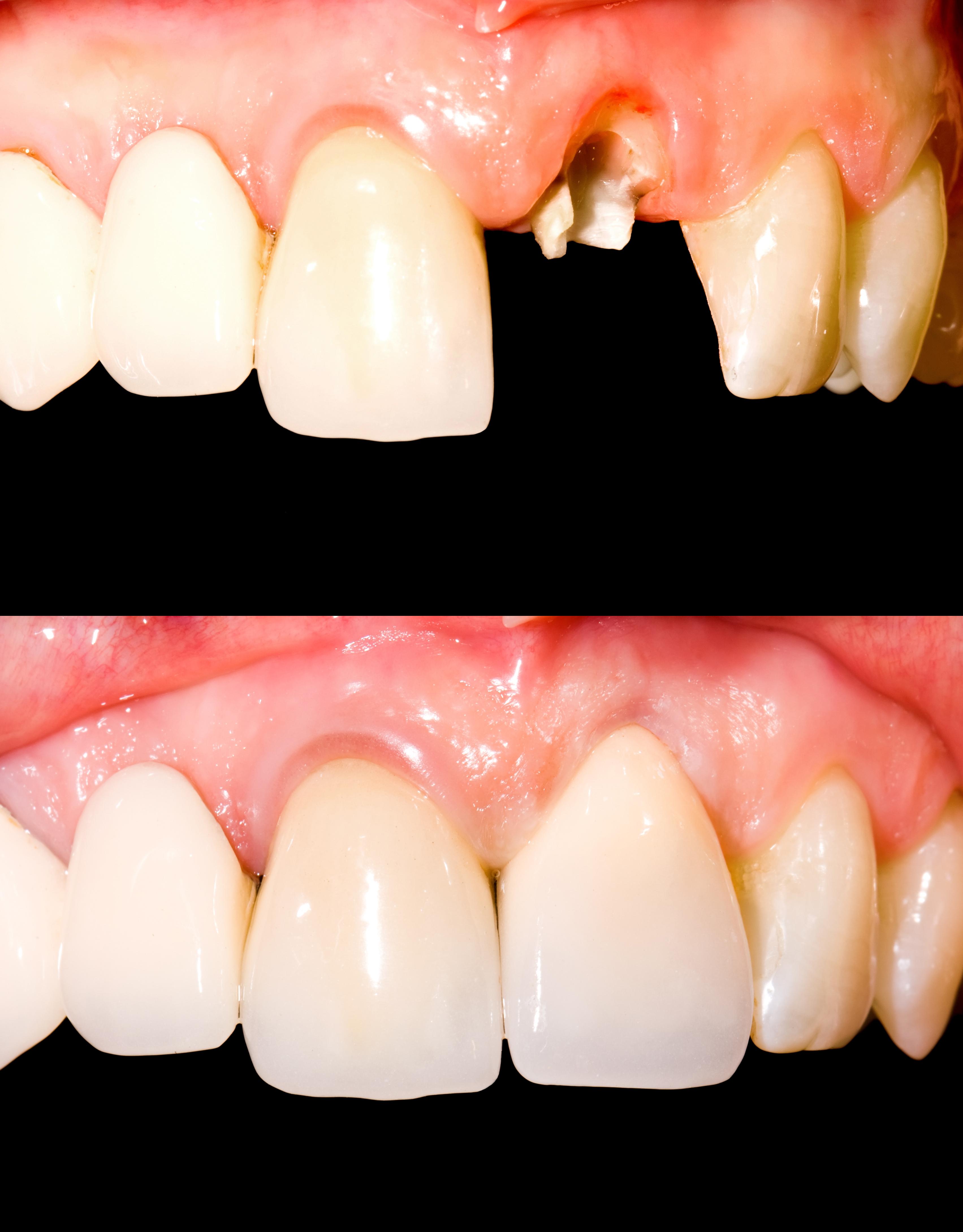 差し歯のやり替え