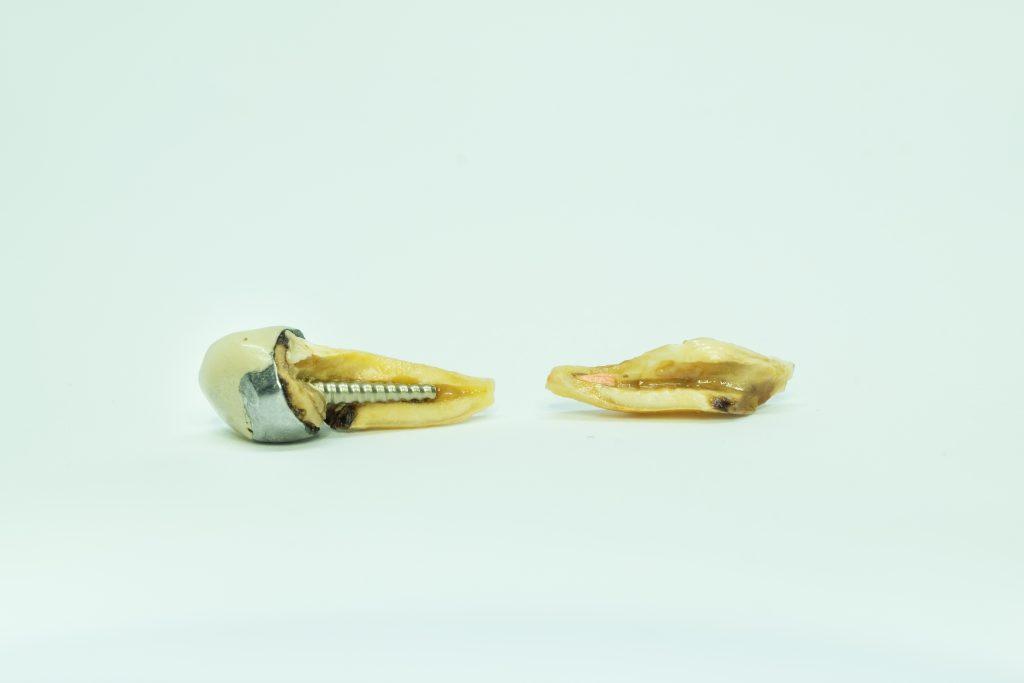 歯根破折した差し歯
