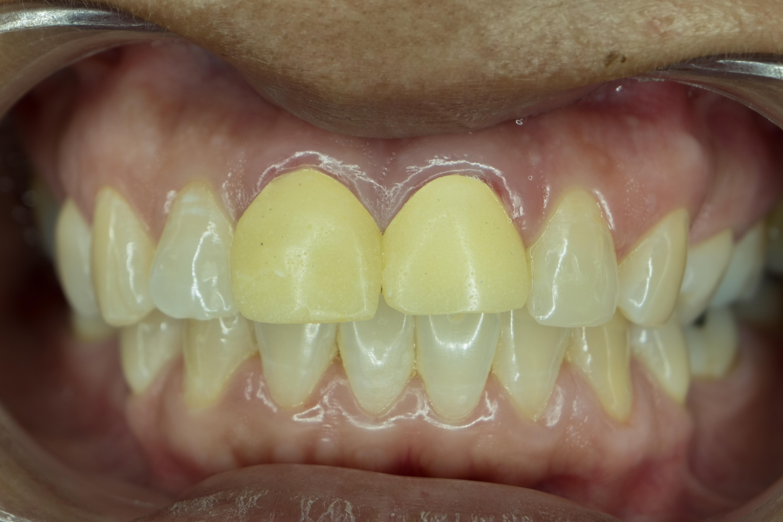 差し歯の黄ばみ