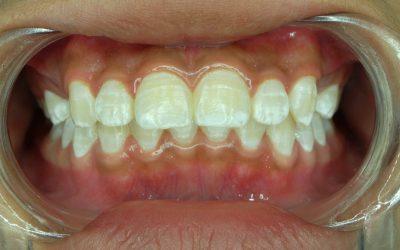 歯のフッ素症