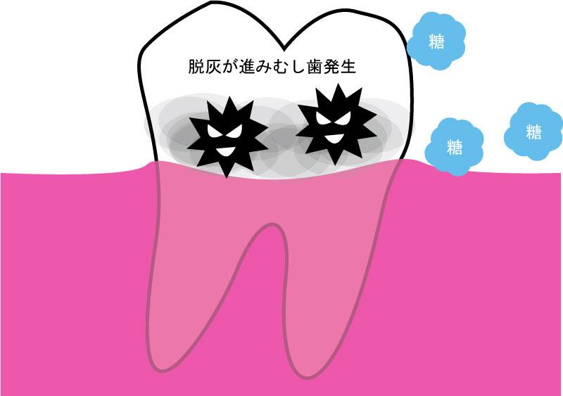 むし歯発生