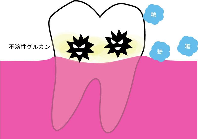 細菌は不溶性グルカンで歯面に付着する