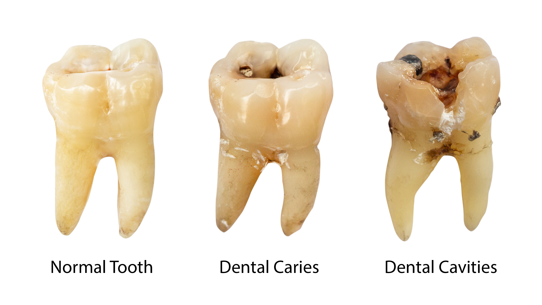 健康な歯とむし歯