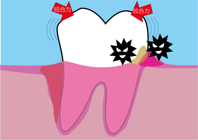歯の周りの細菌と力