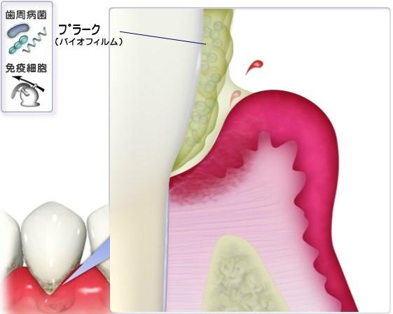 プラークの付着と歯肉の炎症