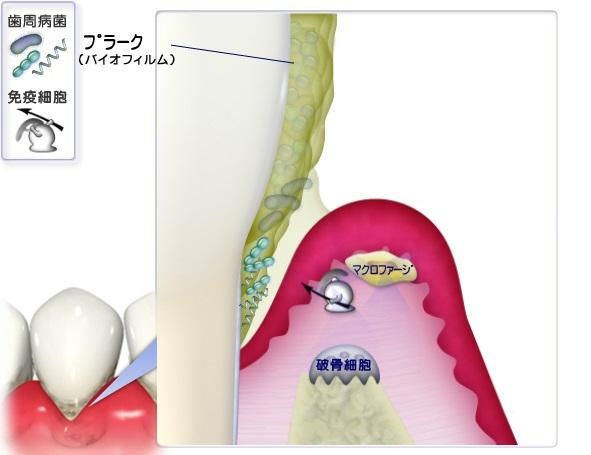 歯周ポケット内の細菌に対する免疫応答