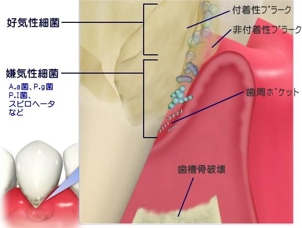 歯周ポケット内の細菌