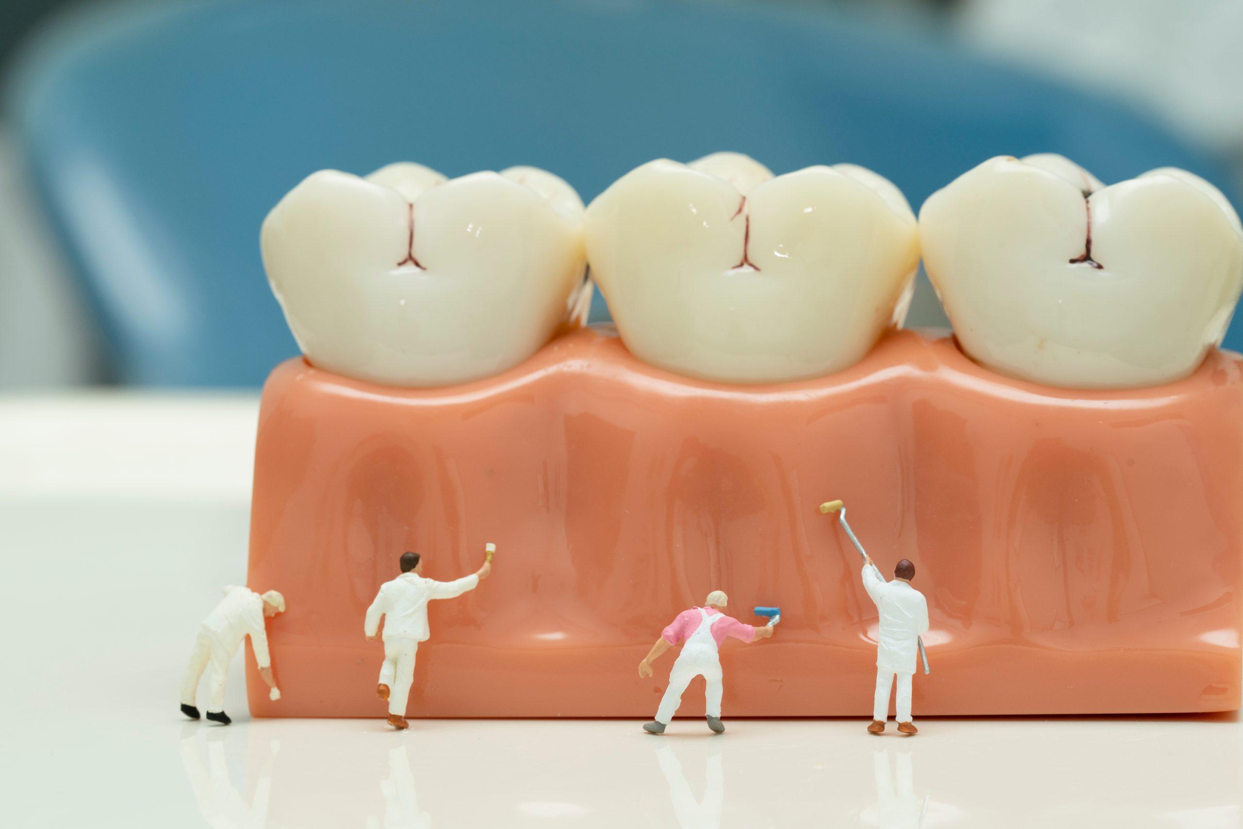 歯茎を守る男性たち