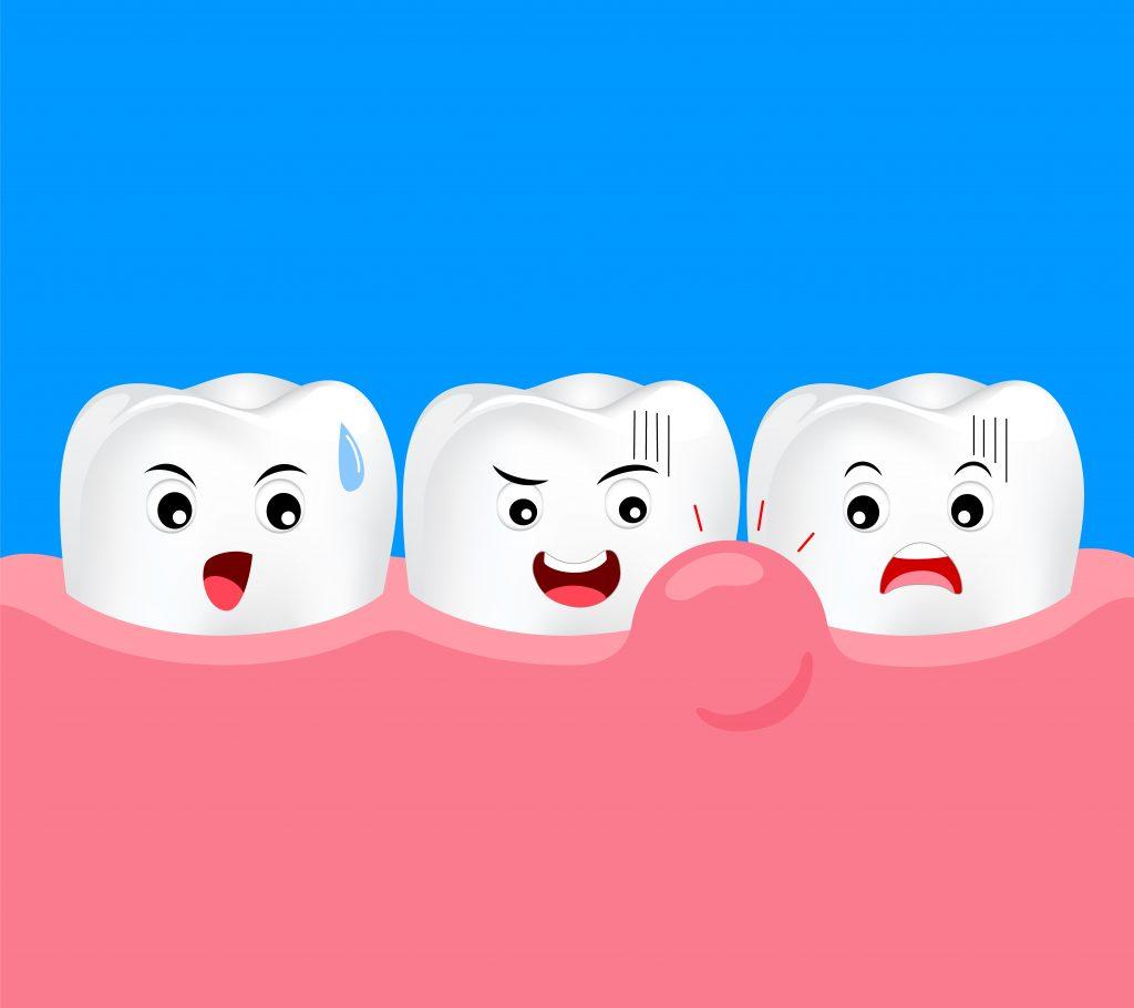歯周病による歯ぐきの腫れ