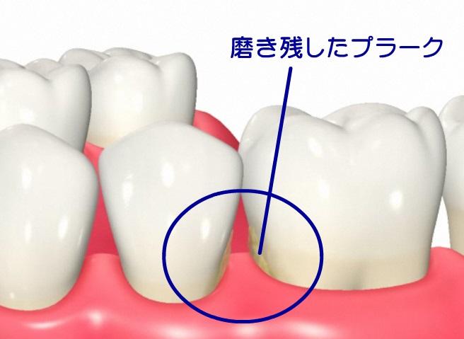 歯間部の磨き残し