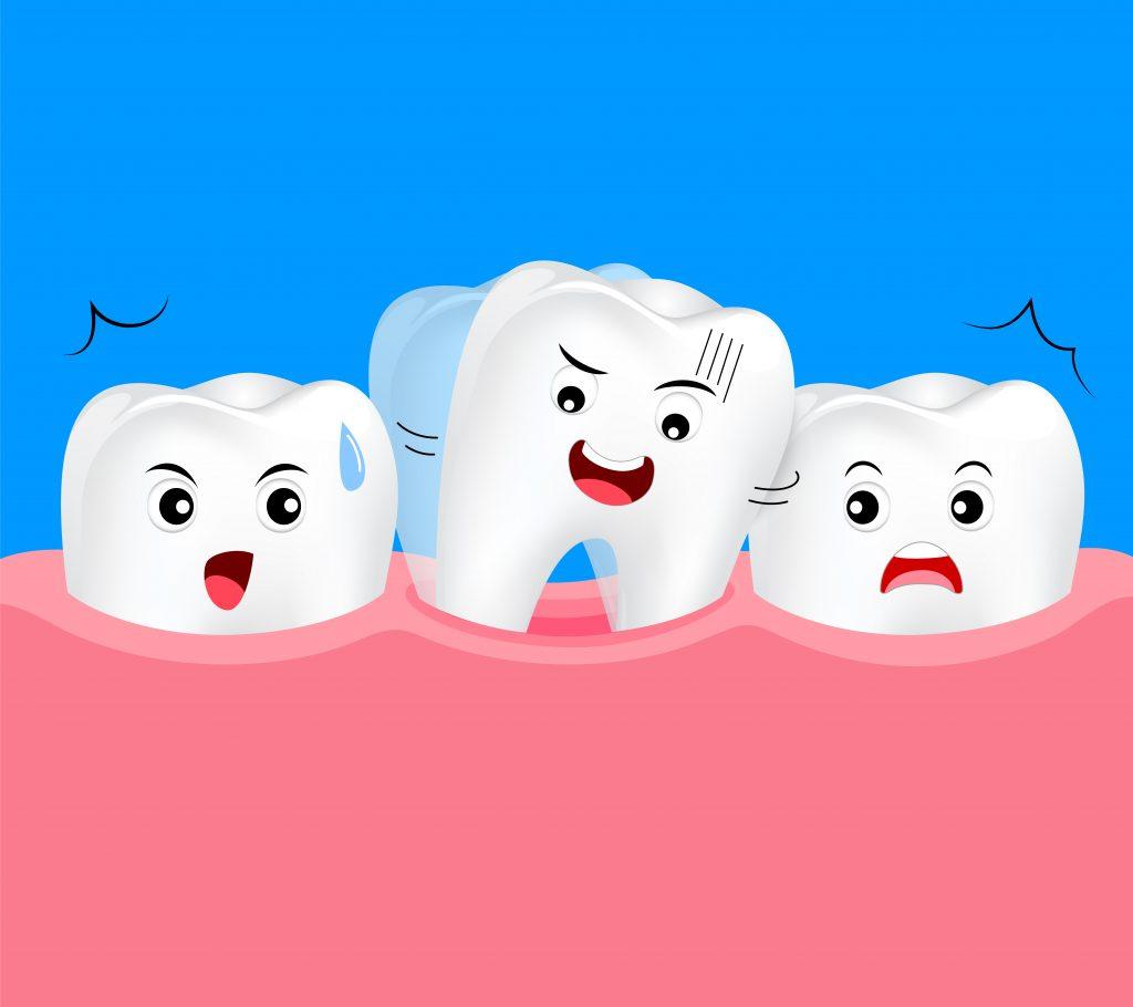 歯周病による歯の動揺