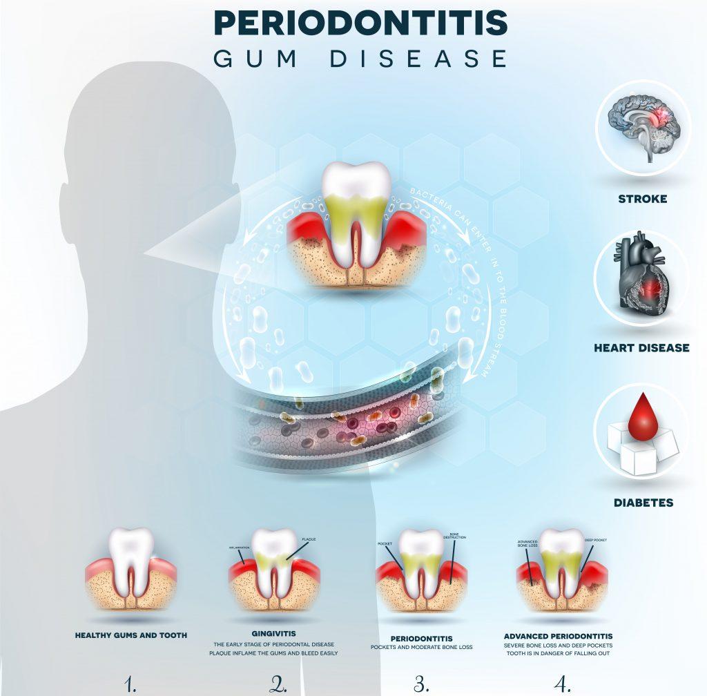 歯周病と脳卒中心血管疾患糖尿病との関連性