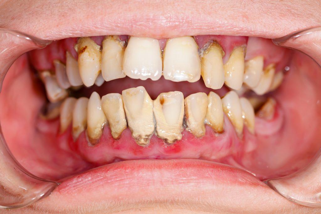 歯周病の口腔内写真