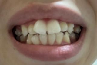 アタッチメントついた歯