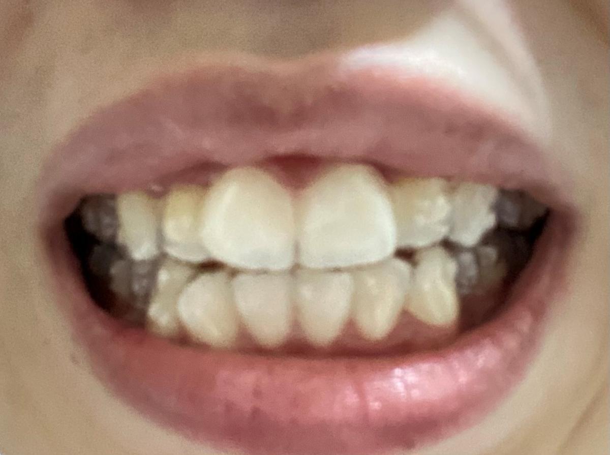 正面からの歯の写真