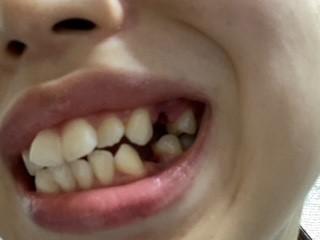 横から見た歯