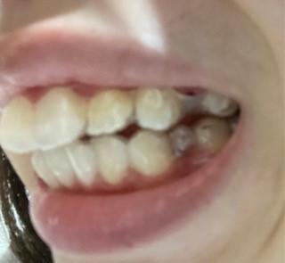 側面からの歯