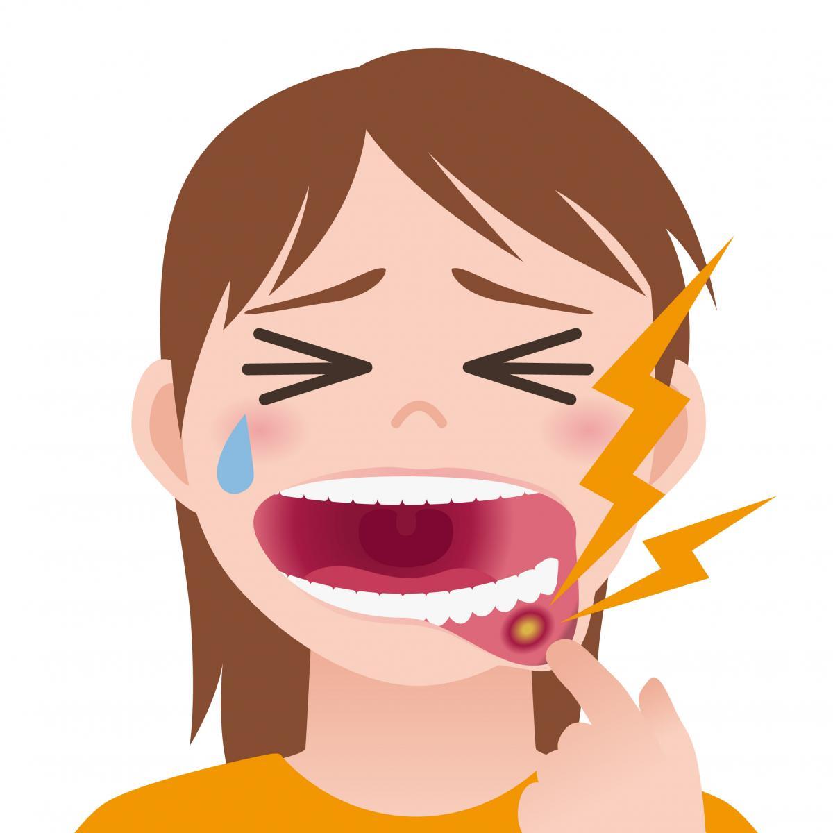 口内炎が痛くて泣いてる女の人