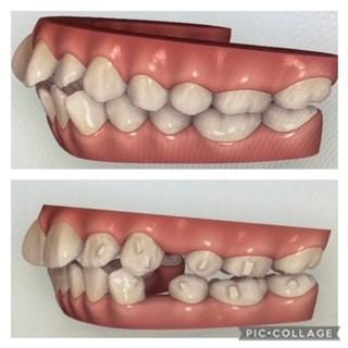左側面の歯
