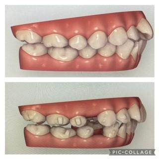 右側面からの歯