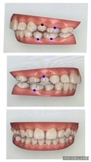 シミュレーションした歯