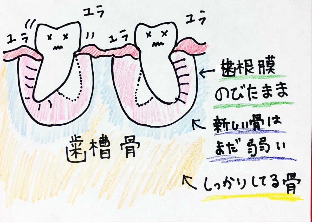 不安定な歯